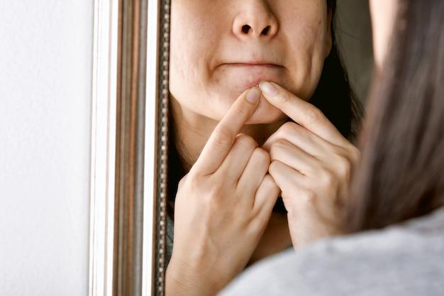 にきび膿とうつ伏せの肌の女性の手がにきびを絞る。