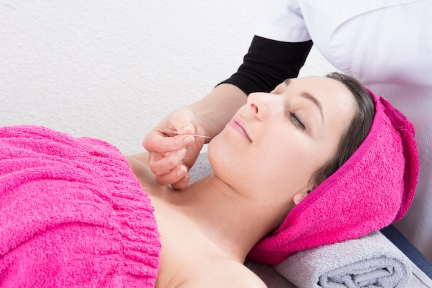 Acupuncture in the face of a beautiful woman in the wellness center and spa