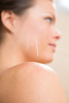 Acupuncture needle pricking on woman shoulder