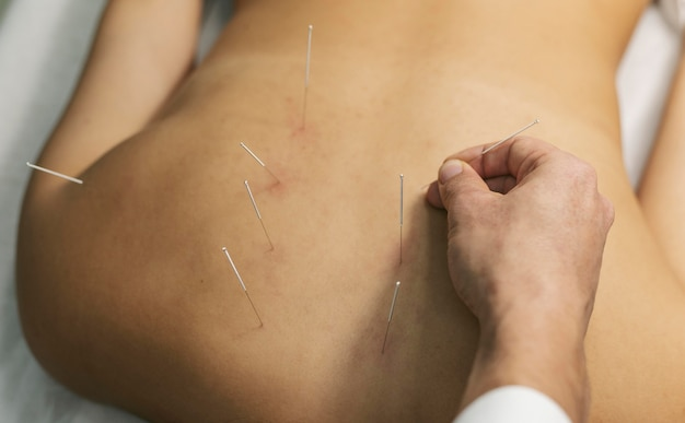 Acupuncture process close up