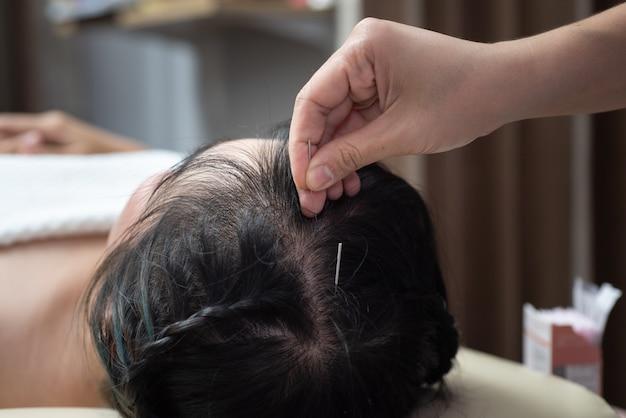 頭への鍼治療。