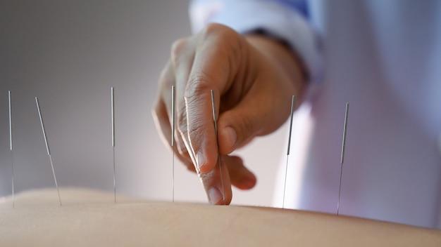 鍼灸。サロンで背中と鍼灸治療をしている女性