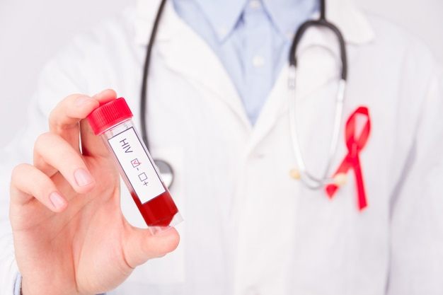 Aids / hiv disease concept. doctor wearing white coat and blue rubber medical gloves with pinned red ribbon as a symbol of aids