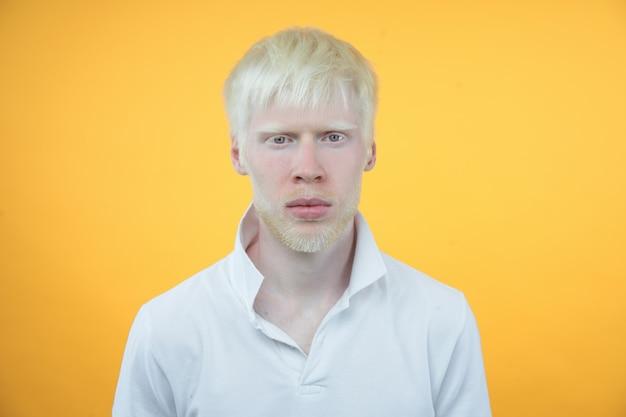 黄色の背景に分離されたスタジオ服を着たtシャツのアルビノアルビノ男。異常な逸脱。珍しい外観