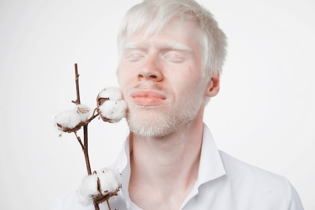 Albinism albino man in studio dressed t-shirt isolated on a whit