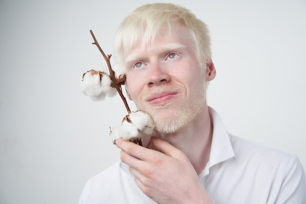 Albinism albino man in studio dressed t-shirt isolated on a white background. abnormal deviations. unusual appearance