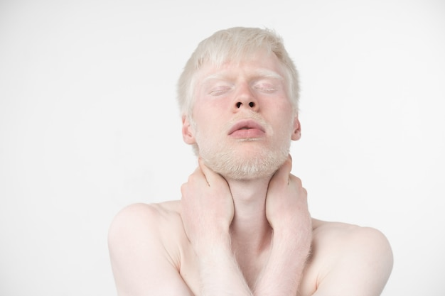 Albino man in  studio dressed t-shirt isolated on a white