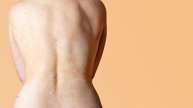 女性の背中の皮膚のアレルギー性皮膚炎。皮膚疾患。神経皮膚炎、湿疹またはアレルギー性発疹。ヘルスケアと医療。皮膚の落屑。