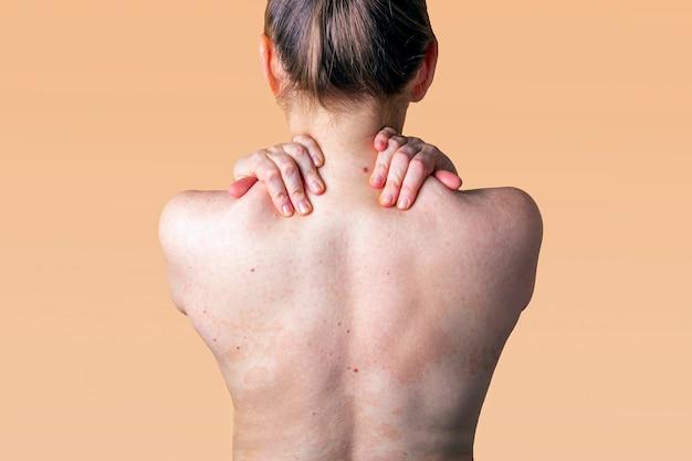 女性の背中の皮膚のアレルギー性皮膚炎。皮膚疾患。神経皮膚炎、湿疹またはアレルギー性発疹。ヘルスケアと医療。