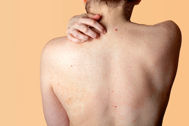 Allergic dermatitis on the skin of a woman's back. skin disease. neurodermatitis disease, eczema or allergy rash. healthcare and medical. desquamation of the skin.