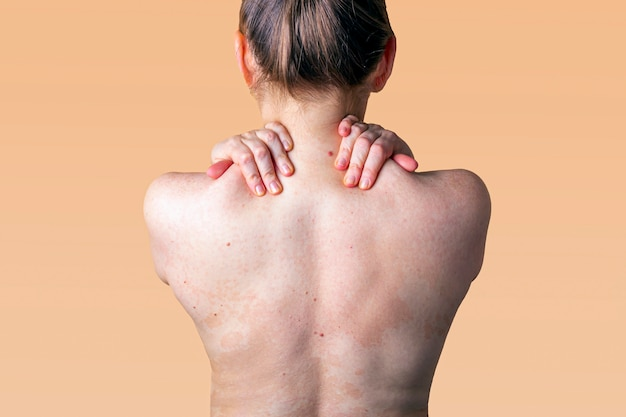 Allergic dermatitis on the skin of a woman's back. skin disease. neurodermatitis disease, eczema or allergy rash. healthcare and medical.