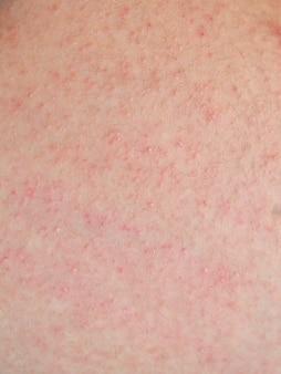 환자의 알레르기 성 발진 피부염 피부