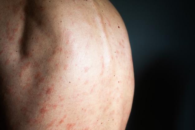Концепция аллергии. человек страдает раздражением кожи, изолированным на сером фоне. зуд в спине с сыпью
