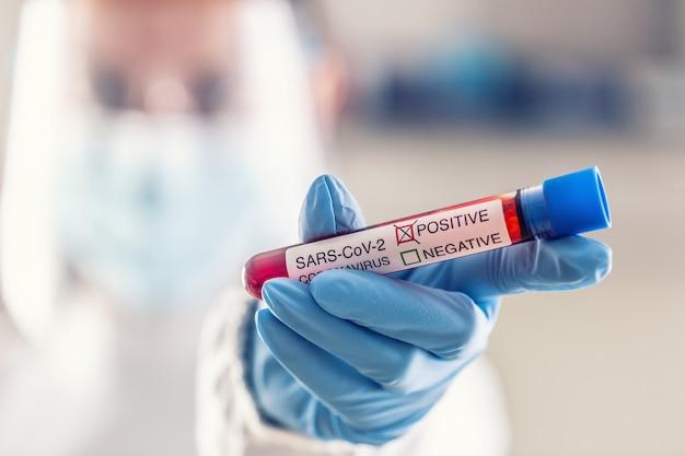 Ампула с положительным тестом на коронавирус sars-cov2 в руке медицинского работника.