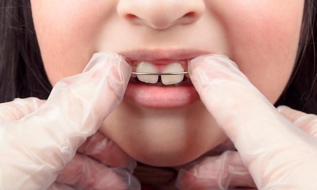 Ортодонт накладывает ортодонтический аппарат на зубы девушки