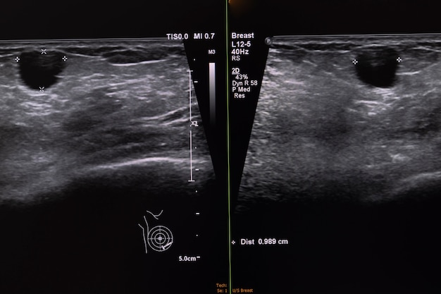 Ультразвуковое изображение женской груди, показывающее большой узел в ткани груди.
