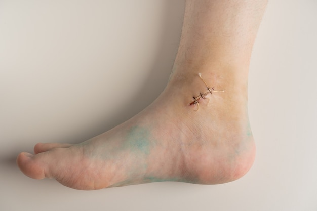 Ankle wound with a suture after ankle fracture and removal of the cast.