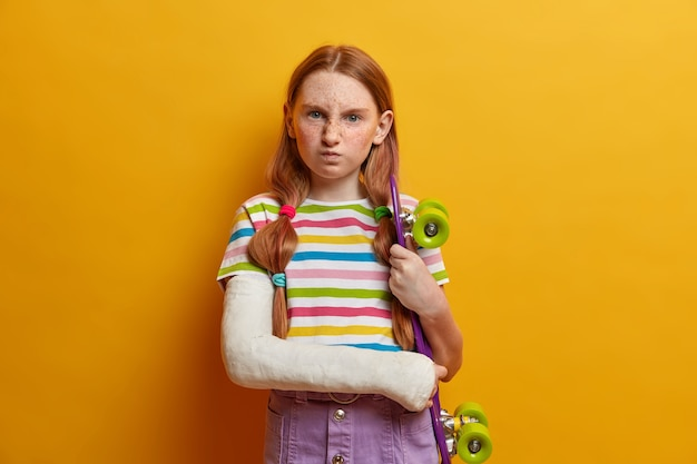 Annoyed little girl with ginger hair and freckles, smirks face and has dissatisfied expression, poses with skateboard, cannot continue driving because of arm trauma. children, health care, risky sport