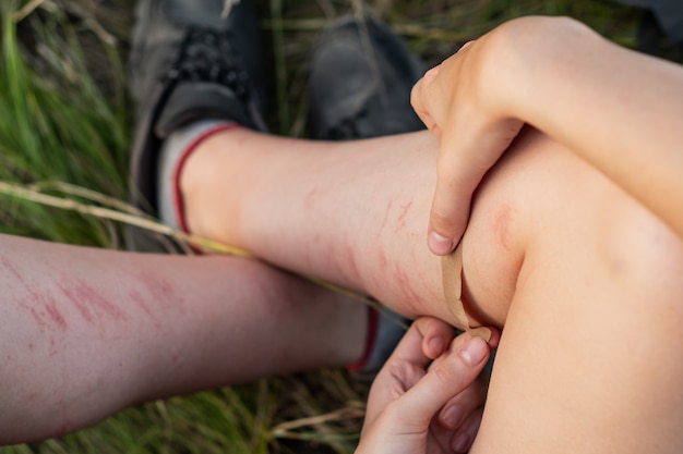 Applying band-aid emplastrum on injured leg outdoors. close up image of using protective sticking plaster to heal brusied and scratched leg on hiking walking tour