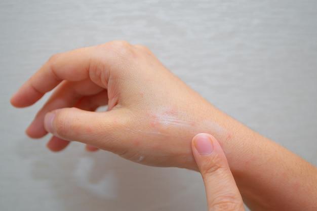 Applying cream against mosquito bites