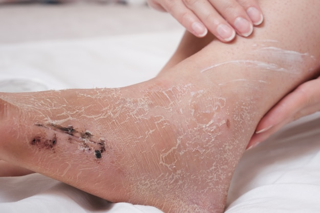 Applying the cream to the damaged skin of the leg. rehabilitation after removal of plaster bandage