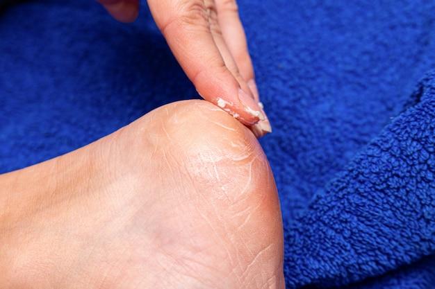 トウモロコシ、カルス、カロシティ、ひび割れ、肌の軟化、美容処置のために足の裏にクリームを塗る