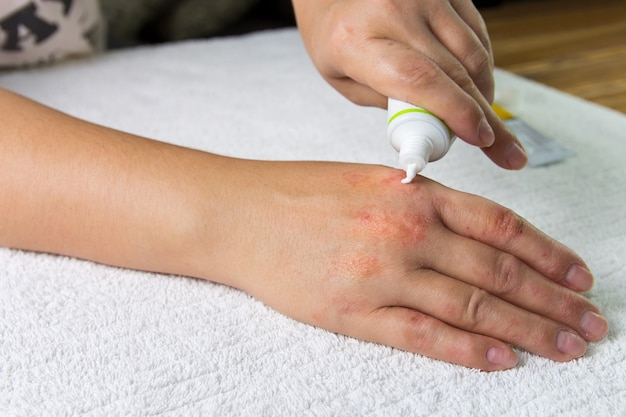 Applying the ointment and emollient cream in the treatment and hydration of the skin