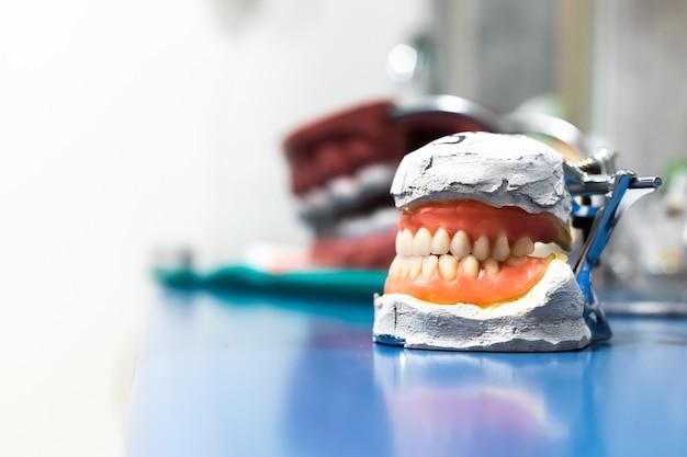 人工顎義歯ジルコニウム磁器製歯板