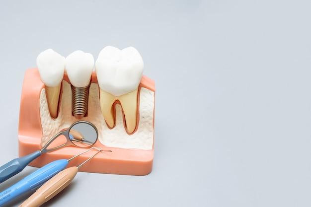 Искусственные зубы рядом с инструментами стоматолога на сером фоне