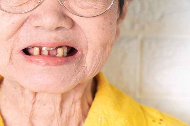 Asian elderly woman over 70 years old be smile with a few broken teeth.