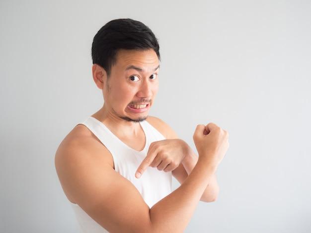 Asian man get sunburn on the arm