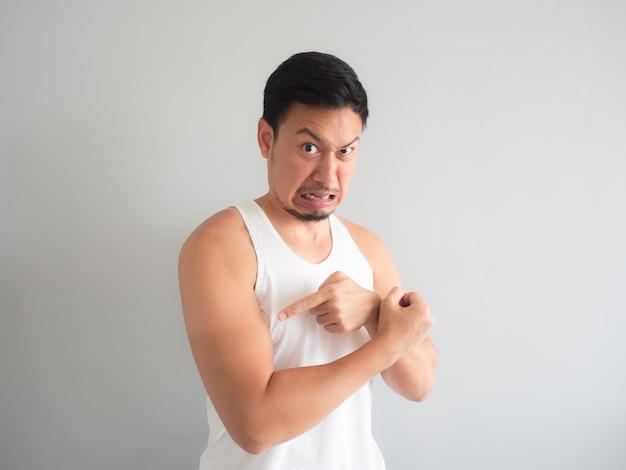 Asian man get sunburn on the arm.