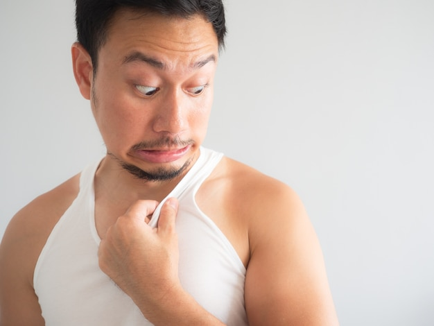 Asian man get ugly tanned on the shoulder