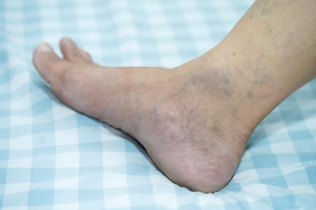 彼の足に静脈瘤のあるアジア人男性。