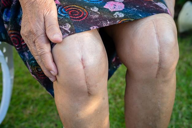 アジアのシニア女性の老婆患者は、彼女の傷跡の外科的膝関節全置換術を示しています。
