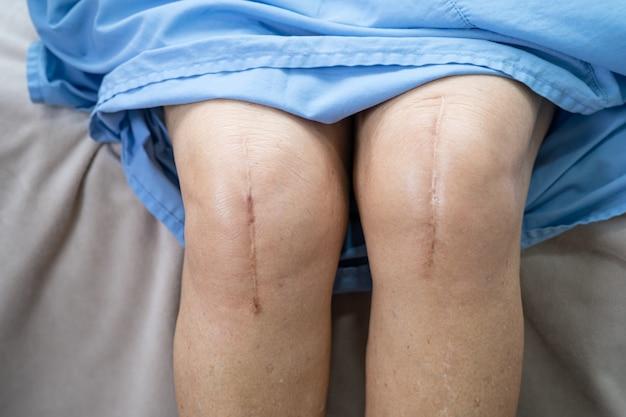 アジアのシニアまたは高齢の老婦人女性患者は、彼女の傷跡の外科的膝関節全置換を示しています