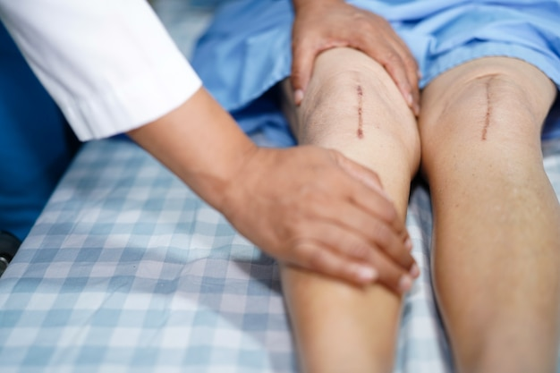 아시아 노인 또는 노인 여성 여자 환자가 그녀의 흉터를 보여