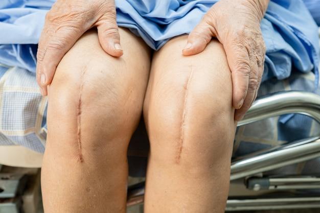 Азиатская старшая женщина терпеливейшая показывает ее шрам хирургическая полная замена коленного сустава.
