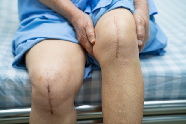 Asian senior woman patient show her scars surgical total knee joint replacement .