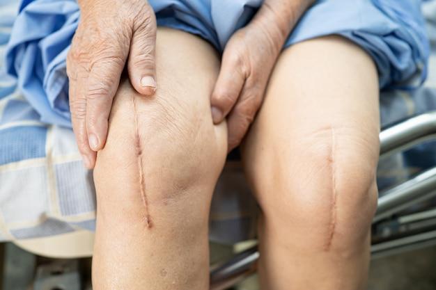 Азиатский пожилой пациент-женщина показывает свои шрамы после хирургической замены коленного сустава.