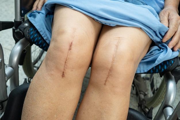 Азиатская пациентка старшего возраста показывает свои шрамы после хирургической замены коленного сустава.