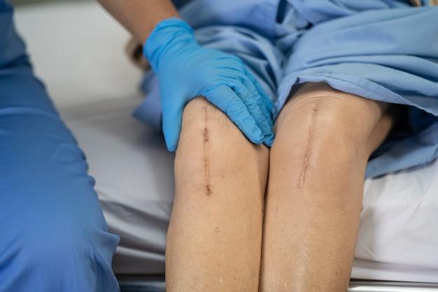 アジアの年配の女性患者は、彼女の傷跡の外科的膝関節全置換術を示しています。