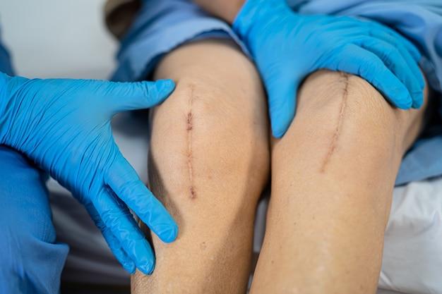 아시아 수석 여자 환자는 그녀의 흉터 수술 총 무릎 관절 교체를 보여줍니다.
