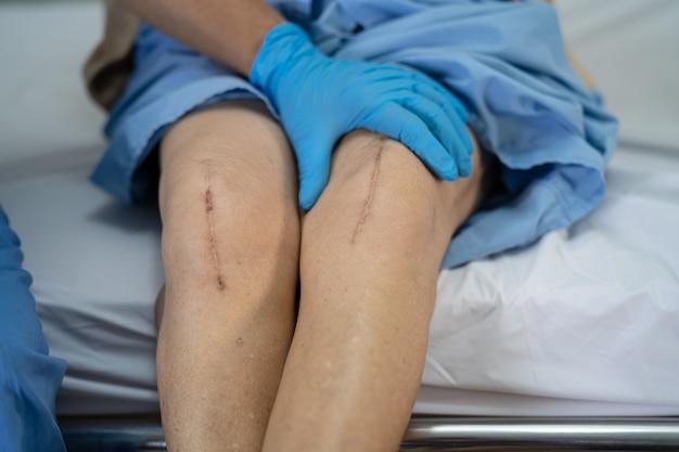 アジアの年配の女性患者は、彼女の瘢痕の外科的膝関節全置換術を示しています。