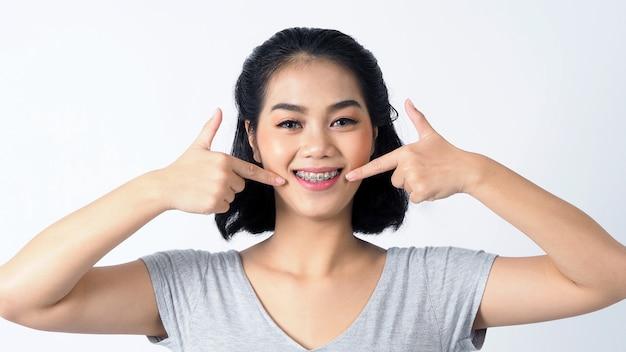 교정기와 카메라에 웃는 아시아 청소년 얼굴 치열 교정의 전문 금속 와이어 재료를 포함하는 치과 교정 치아를 보여줍니다.