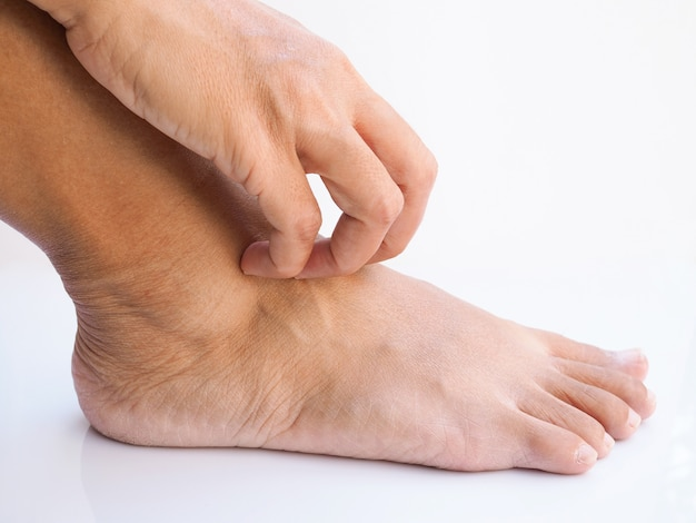 Asian thai woman itch and scratch on feet, skin disease, dry skin or insect bites at foot.