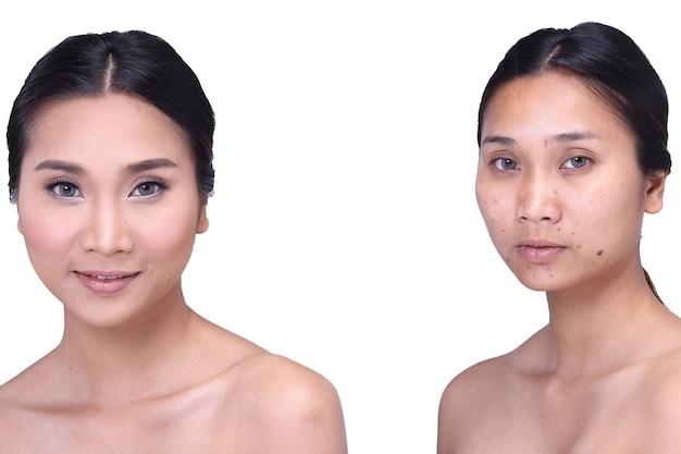 메이크업 전후의 아시아 여성. 수정 없음, 여드름이 있는 신선한 얼굴, 피부 두더지, 사마귀, 좋은 기초 및 기초 화장품, 격리