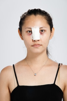 Asian woman did nose plastic surgery to lift up shape. after rhinoplasty, patient needs bandage on nose face for two weeks.
