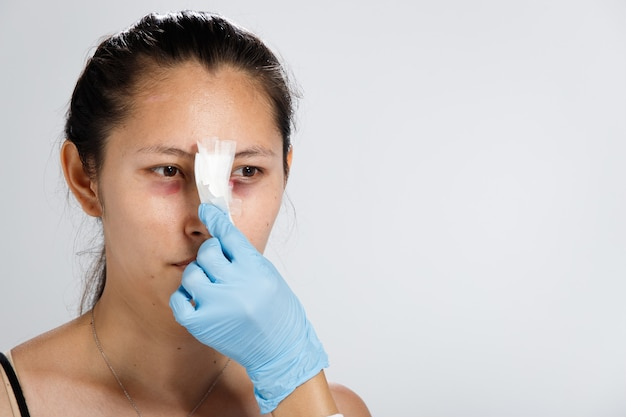 Asian woman did nose plastic surgery to lift up shape. doctor check after rhinoplasty, patient needs bandage on nose face for two weeks.