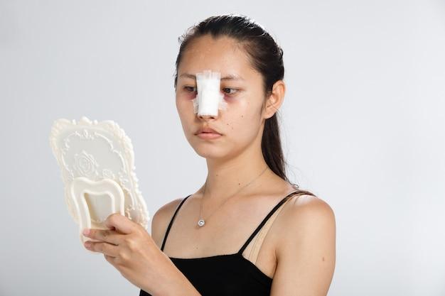 아시아 여성은 코 성형 수술을하여 형태를 높였습니다. 코 성형 후 2 주 동안 코 얼굴에 붕대를 감아 야합니다.